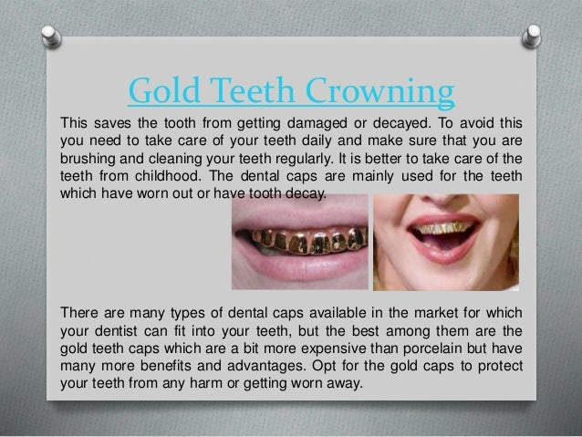 2. Gold Teeth Crowning This saves the tooth from getting damaged or decayed.