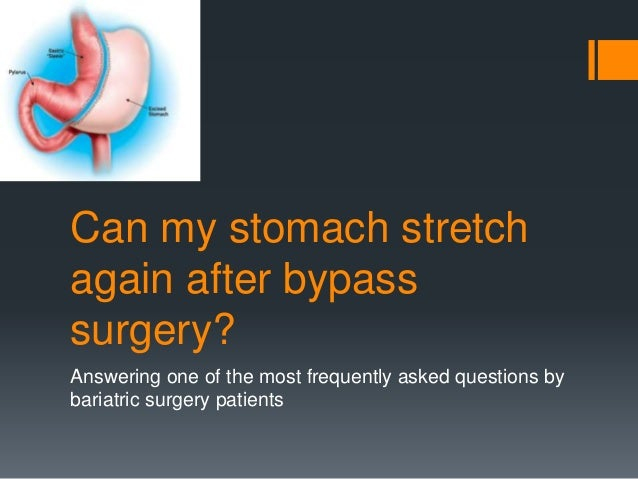 Can my stomach stretch again after bypass surgery? Answering one of the most frequently asked questions by bariatric surge...