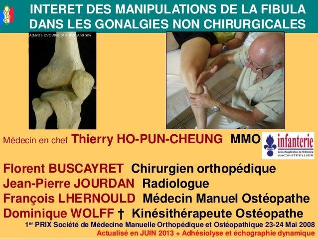 INTERET DES MANIPULATIONS DE LA FIBULADANS LES GONALGIES NON CHIRURGICALESMédecin en chef Thierry HO-PUN-CHEUNG MMOFlorent...