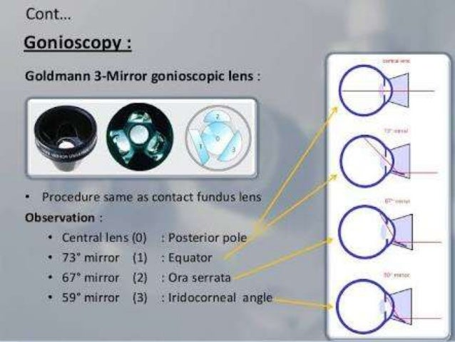 Gonioscopy Gonioscopic Lenses Principle And Clinical Aspects likewise Brushless Dc Motor Guide in addition Hybrid Solar Inverter Review also Air skyrocket moreover Uti S. on direct coupling