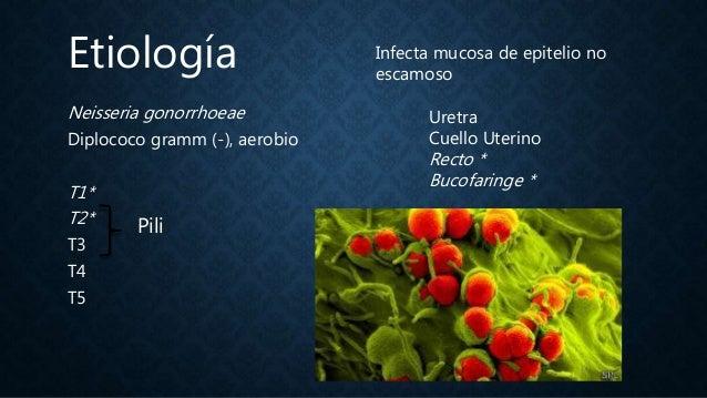 Gonorrea Slide 2