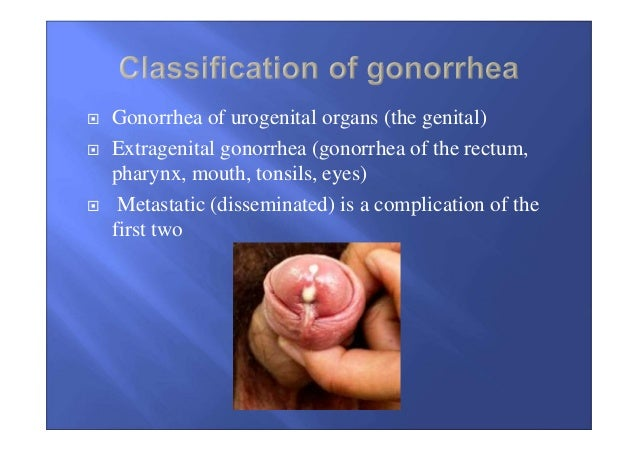 Gonorrhea Infection Pictures | Gonorrhea STD Images