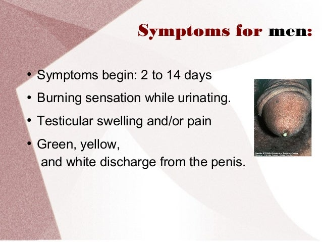 male discharge while urinating