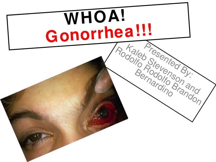 Presented By: Kaleb Stevenson and Rodolfo Rodolfo Brandon Bernardino WHOA!  Gonorrhea!!!