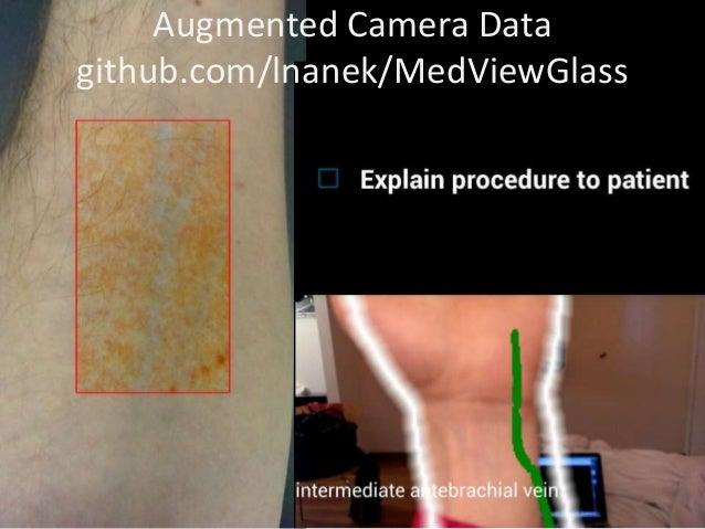 Augmented Camera Datagithub.com/lnanek/MedViewGlass