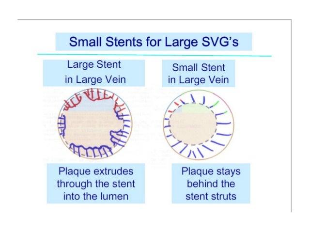 saphenous  venous graft interventions