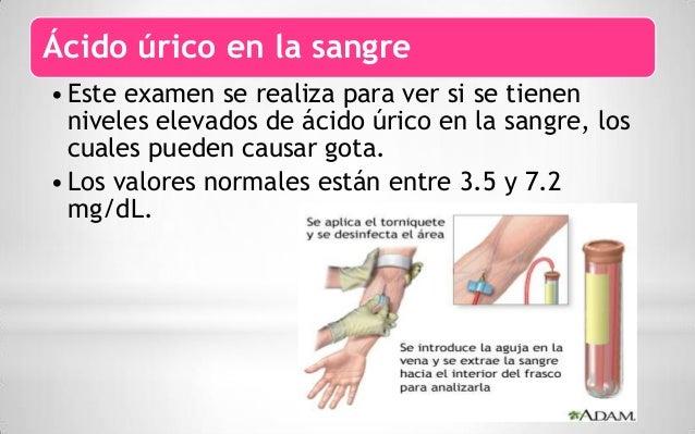 alimentos aconsejados para evitar acido urico sintomas de acido urico en el cuerpo acido urico alto definicion
