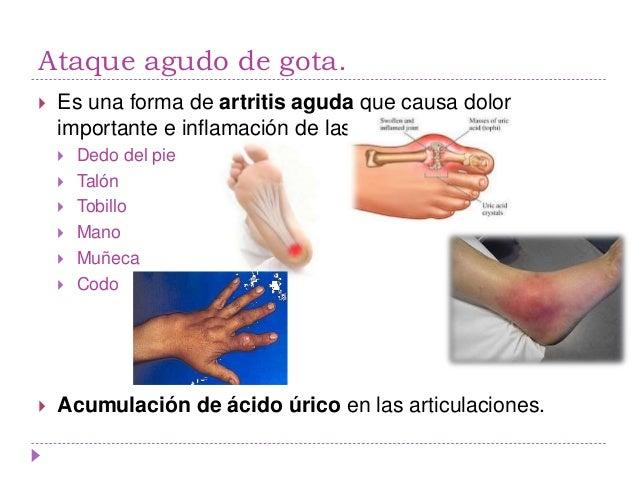 ataque de acido urico en el pie acido urico alto pies hinchados acido urico hinchazon pie
