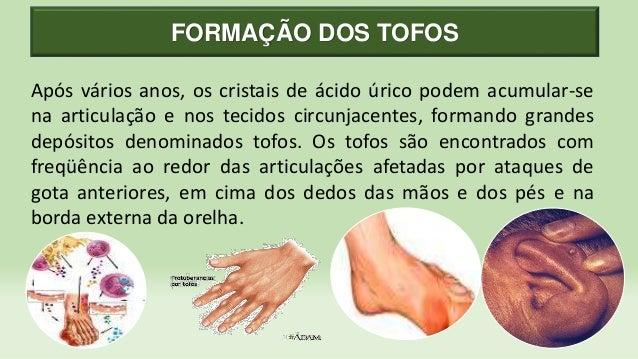 Acido urico maos sintomas el queso aumenta el acido urico dolor de talon del pie acido urico - Alimentos prohibidos con acido urico ...