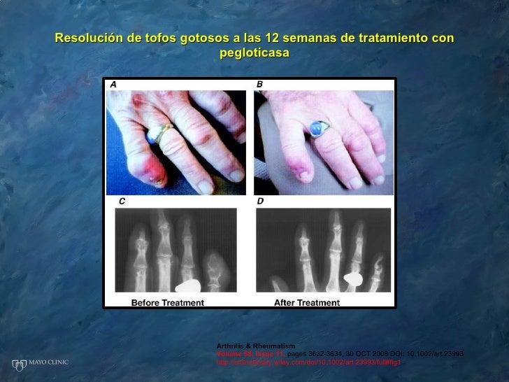 como puedo contrarrestar el acido urico dedos.hinchados acido urico thrombocidad mejillones para acido urico