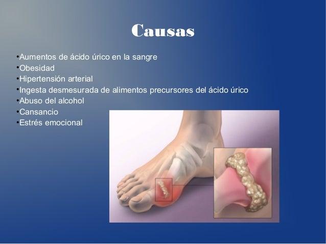 enfermedades por aumento de acido urico remedios para gota acido urico medicina natural para acido urico gota
