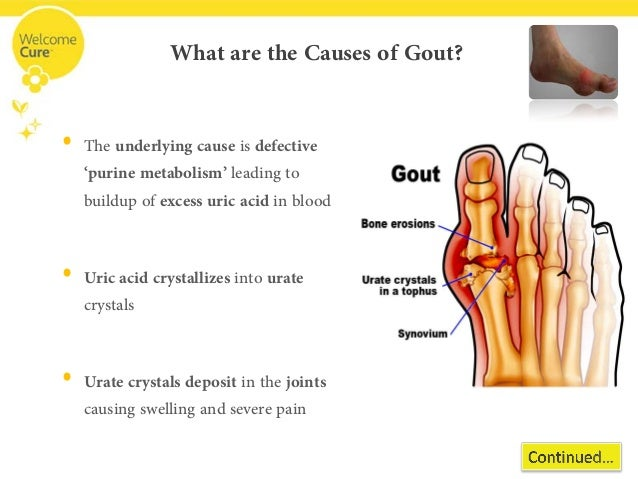 gout pain wiki gout treatment anti inflammatory gout in ankle no swelling