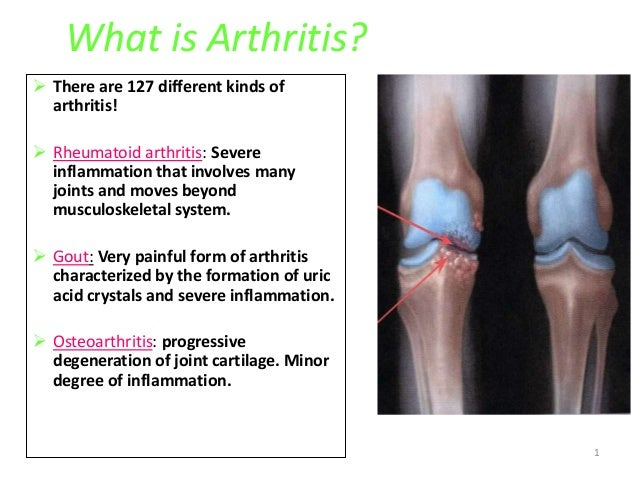 1 What is Arthritis?  There are 127 different kinds of arthritis!  Rheumatoid arthritis: Severe inflammation that involv...