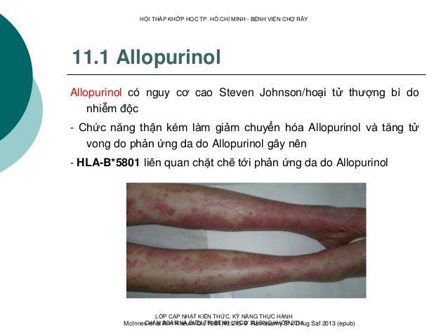 11.1 Allopurinol Allopurinol có nguy cơ cao Steven Johnson/hoại tử thượng bì do nhiễm độc - Chức năng thận kém làm giảm ch...