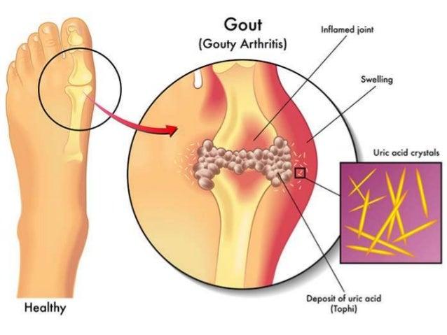 Gout and Rheumatoid arthritis (RA)