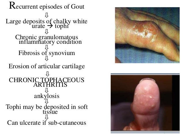 gout flare with low uric acid best medicine for gout in homeopathy