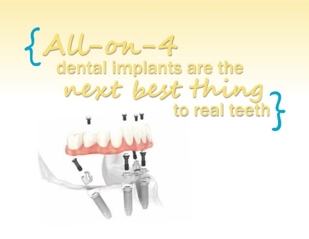 { } All-on-4 dental implants are the next best thing to real teeth