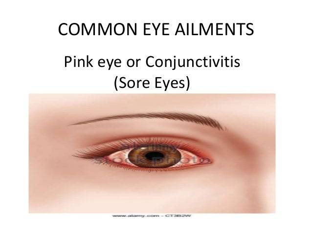 Eye ailments with pictures Common Eye Problems and Infections - OnHealth