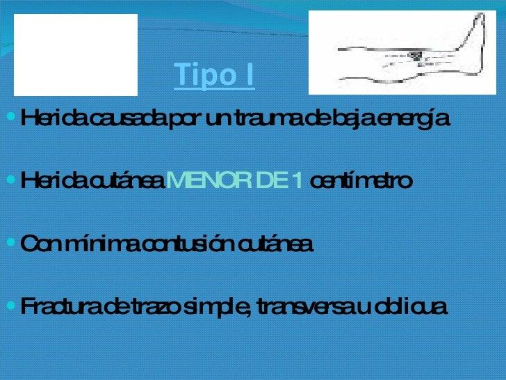 Grados De Una Fractura Expuesta Slide 2