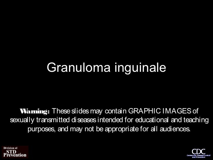 Granuloma inguinale   W arning: These slides may contain GRAPHIC IMAGES ofsexually transmitted diseases intended for educa...