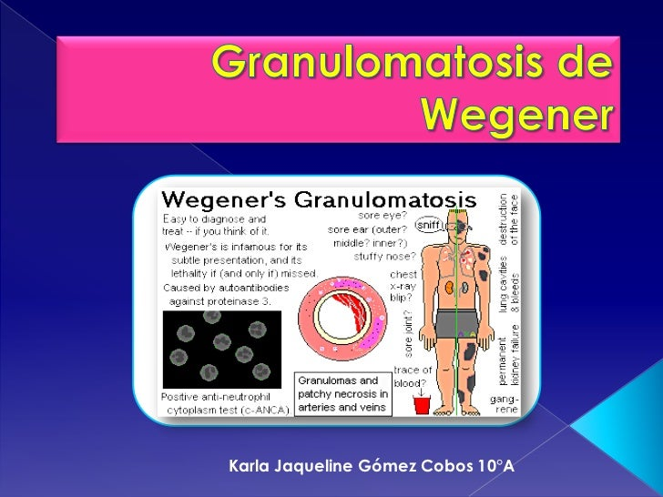 Granulomatosis De Wegener. Retirement And Assisted Living Facilities. Washington State University Online Masters Programs. The Best Selling Car In The World. Recruitment Process Outsourcing Companies. Customer Relations Management Software. New Employee Onboarding Checklist. Library Science Degree Online Accredited. Uk Car Rentals Heathrow Medical School Antigua