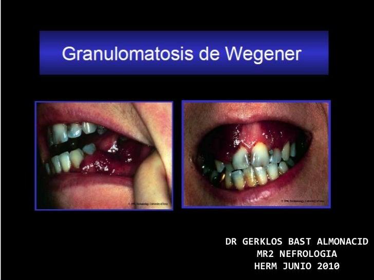 DR GERKLOS BAST ALMONACID      MR2 NEFROLOGIA     HERM JUNIO 2010