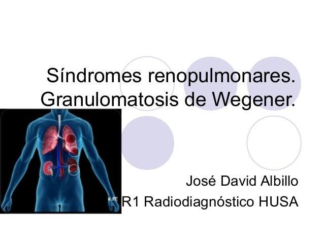 Síndromes renopulmonares. Granulomatosis de Wegener.  José David Albillo R1 Radiodiagnóstico HUSA