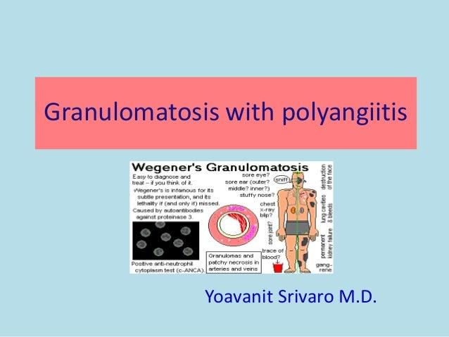 Granulomatosis with polyangiitis Yoavanit Srivaro M.D.