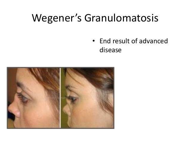Wegener's Granulomatosis • End result of advanced disease