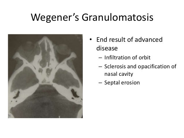 Wegener's Granulomatosis • End result of advanced disease – Infiltration of orbit – Sclerosis and opacification of nasal c...