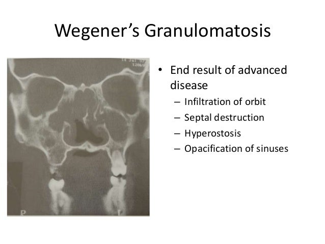Wegener's Granulomatosis • End result of advanced disease – Infiltration of orbit – Septal destruction – Hyperostosis – Op...