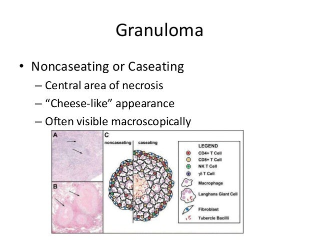 """Granuloma • Noncaseating or Caseating – Central area of necrosis – """"Cheese-like"""" appearance – Often visible macroscopically"""