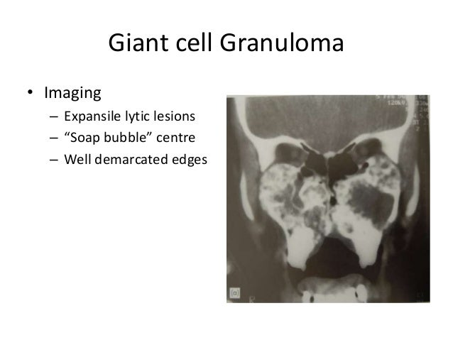 """Giant cell Granuloma • Imaging – Expansile lytic lesions – """"Soap bubble"""" centre – Well demarcated edges"""