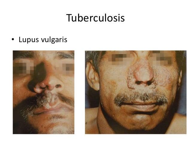 Tuberculosis • Lupus vulgaris
