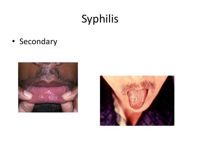 Syphilis • Secondary