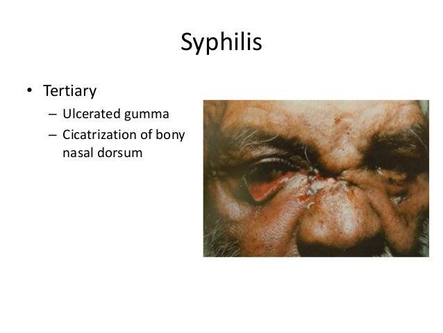 Syphilis • Tertiary – Ulcerated gumma – Cicatrization of bony nasal dorsum