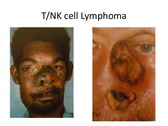 T/NK cell Lymphoma