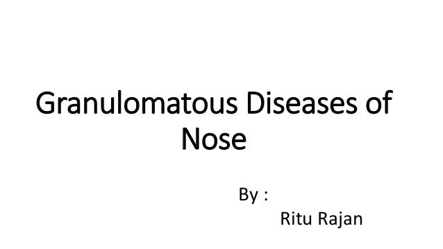 Granulomatous Diseases of Nose By : Ritu Rajan