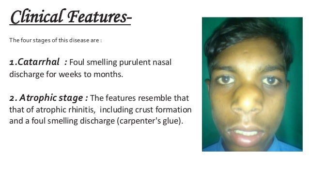 Nasal polyps | Ear, nose, larynx diseases | ePharmaPedia