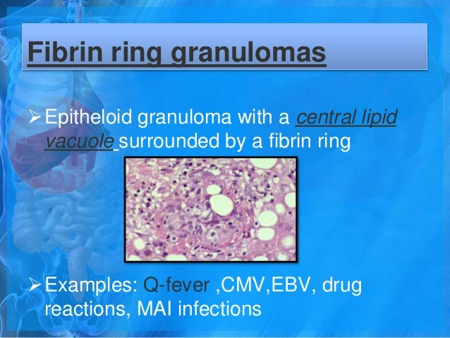 Fibrin Ring Granuloma Drug