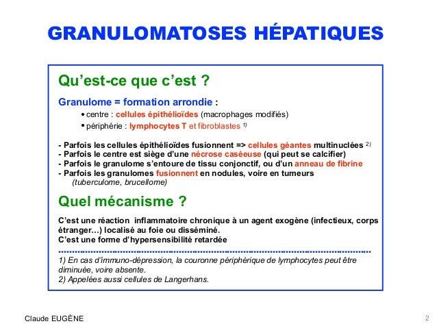 Granulomes hépatiques Slide 2