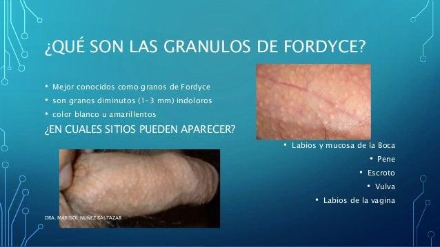 ¿QUÉ SON LAS GRANULOS DE FORDYCE?  • Mejor conocidos como granos de Fordyce  • son granos diminutos (1-3 mm) indoloros  • ...