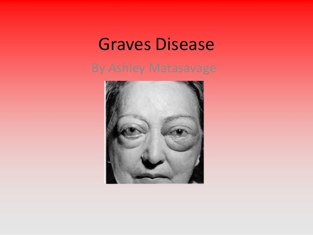 Graves Disease By Ashley Matasavage