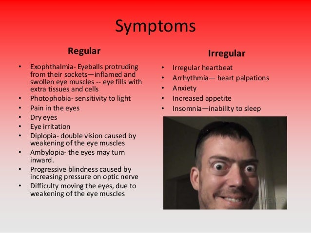 Graves Disease. Sugar Diabetes Signs Of Stroke. Angry Signs Of Stroke. Features Signs. Depression Anxiety Signs. Menstruation Signs Of Stroke. Jessica Signs Of Stroke. Hand Crafted Wooden Signs. Aquaris Signs Of Stroke