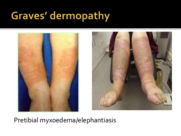 Graves Disease 43588354