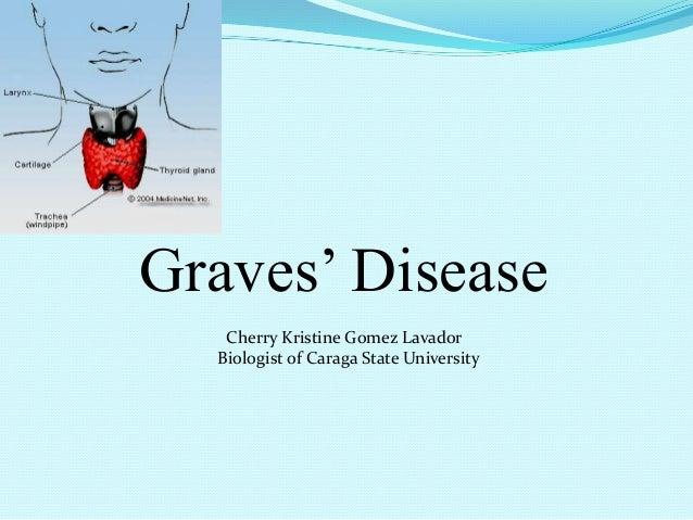 Graves' Disease Cherry Kristine Gomez Lavador Biologist of Caraga State University