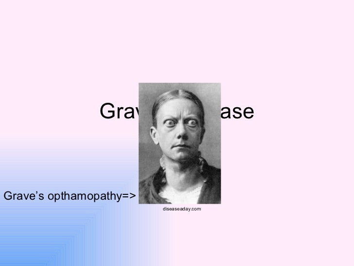 Grave's disease By: Dusty Grave's opthamopathy=> diseaseaday.com