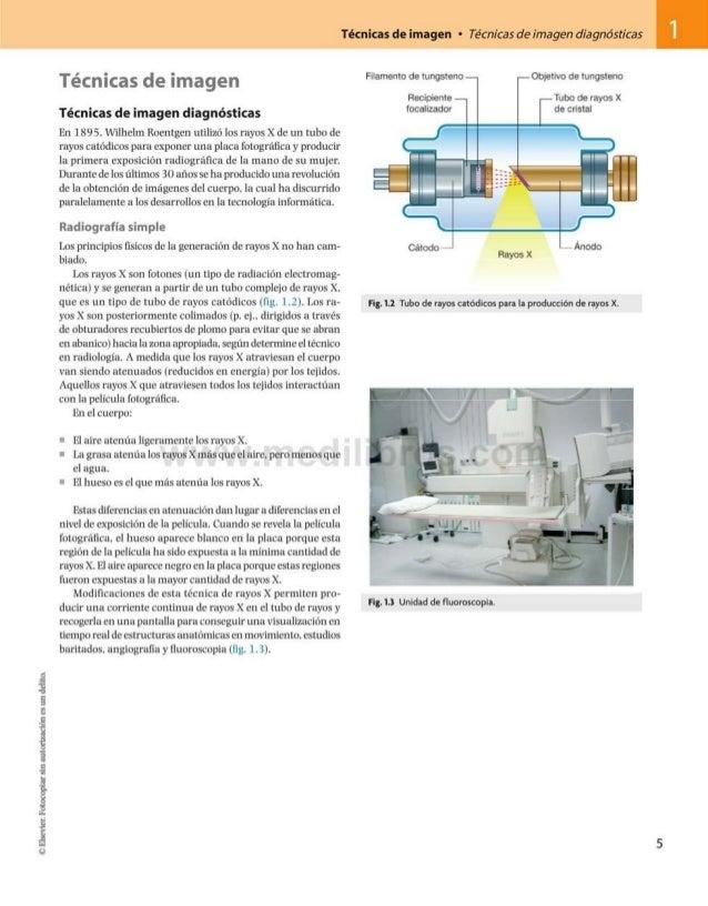 ©Elsevier.Fotocopiarsinautorizaciónesundelito. Técnicas de imagen • Técnicas de imagen diagnósticas 1 Técnicas de imagen T...