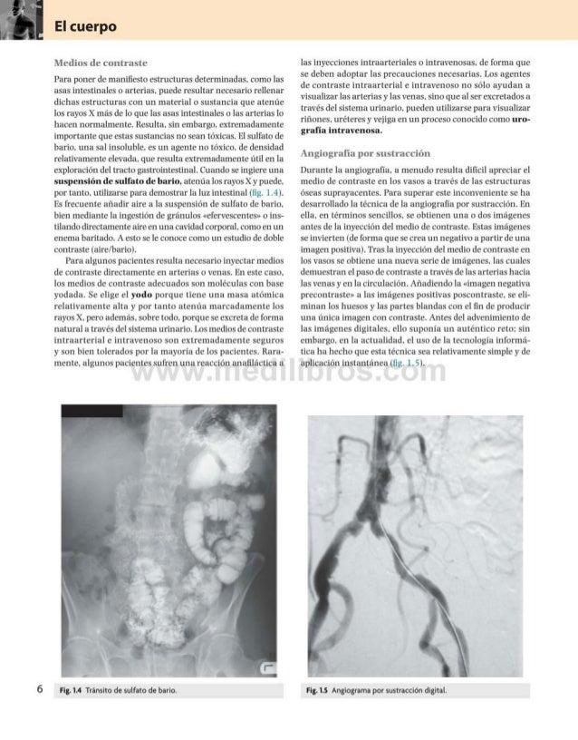 El cuerpo Medios de contraste Para poner de manifiesto estructuras determinadas, como las asas intestinales o arterias, pu...