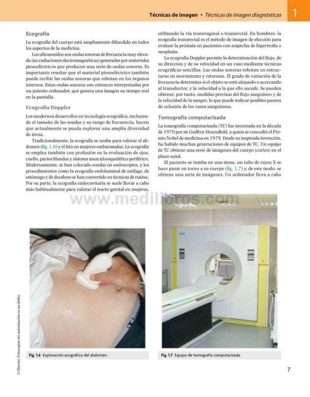 ©Elsevier.Fotocopiarsinautorizaciónesundelito. Técnicas de imagen • Técnicas de imagen diagnósticas 1 Ecografía La ecograf...